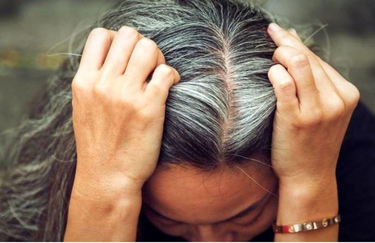 با این راه ها از سفید شدن مو جلوگیری کنید