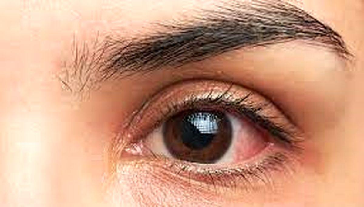 تکنیکی برای جلوگیری از خشتگی چشم