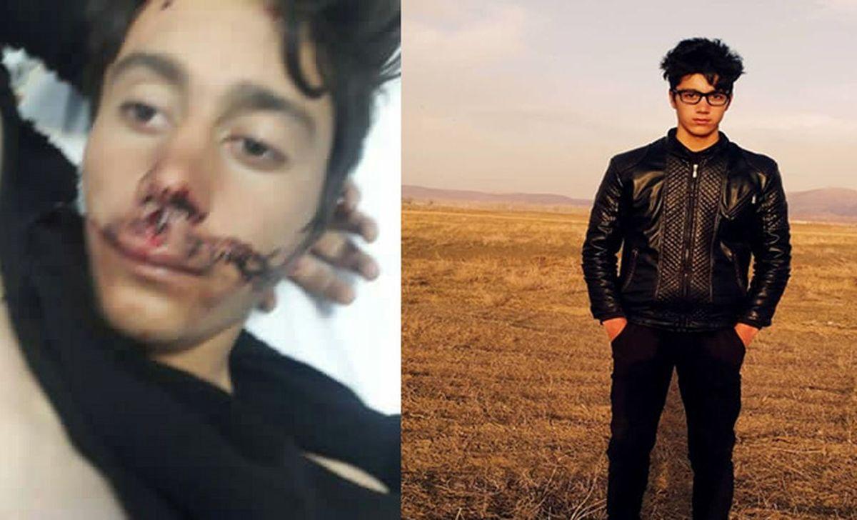 تحقیر و قتل ایرانیان در ترکیه/ فیلم و گفتگوی اختصاصی/ مقصر کیست؟