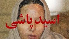 اسیدپاشی به صورت شوهر فقط بخاطر یک عکس!/ در شمال تهران اتفاق افتاد