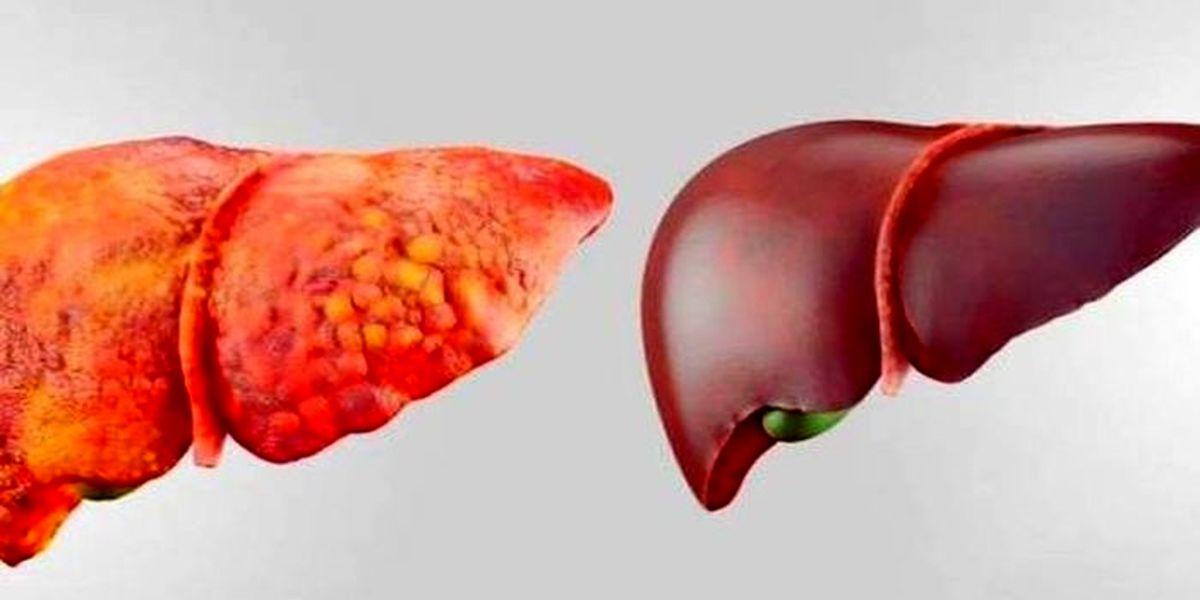 بیماران کبد چرب مراقب باشند ! 8 مورد علائم
