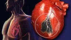 معجزه درمان برای جلوگیری از سکته قلبی + ویدئو